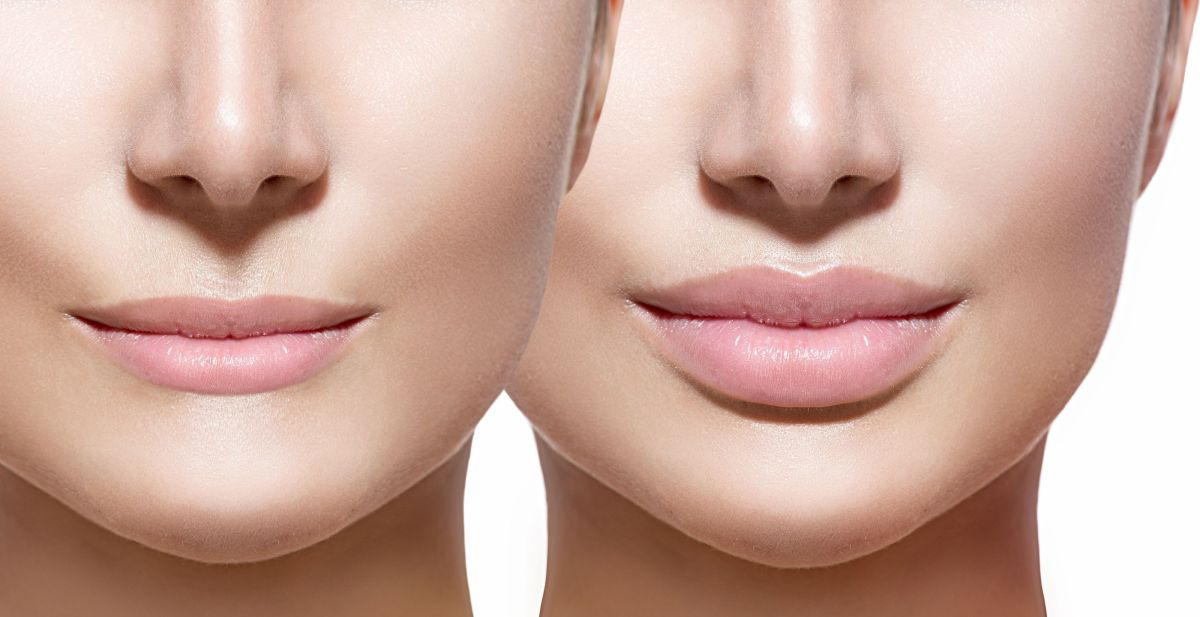 6 Simple Steps To Achieve Fuller Lips In Minutes