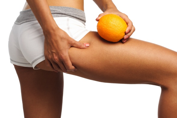 What-causes-cellulite.jpg